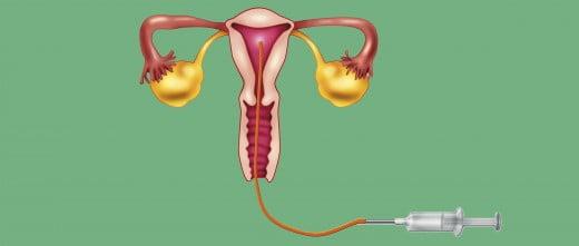 Depositar los espermatozoides