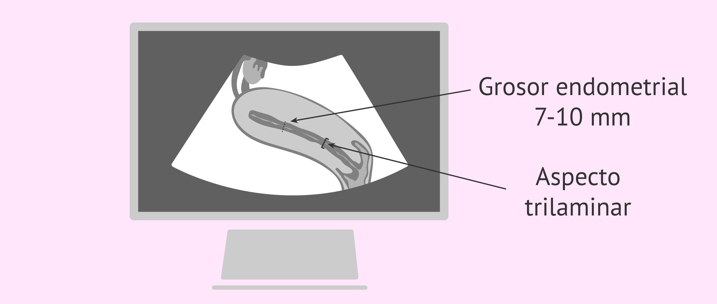 Ecografía endometrio trilaminar