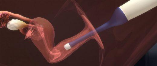 Transferencia de embriones al útero de la madre