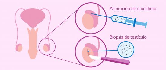 Obtener espermatozoides