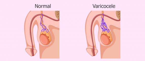 Varicocelectomía costo de laparoscópica la