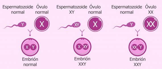 Causas de la trisomía XXY