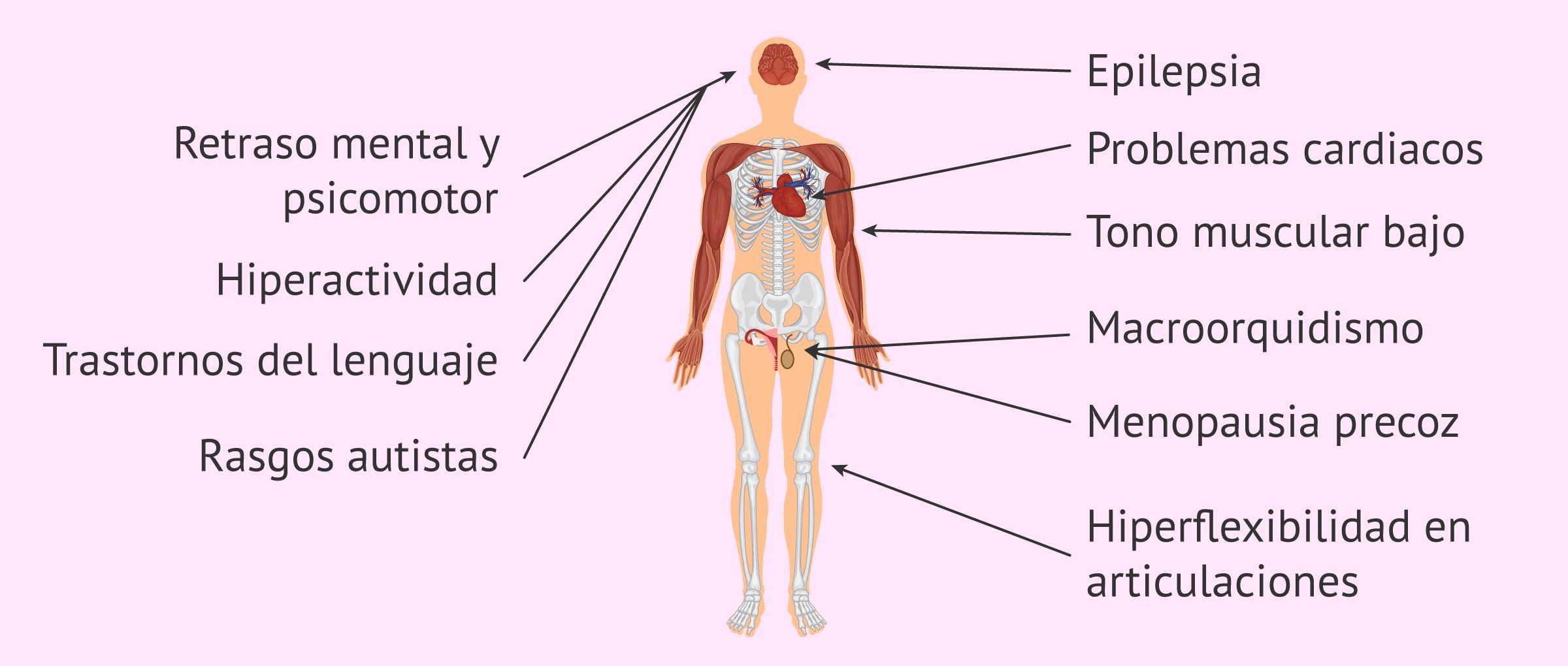 Síndrome X frágil: características